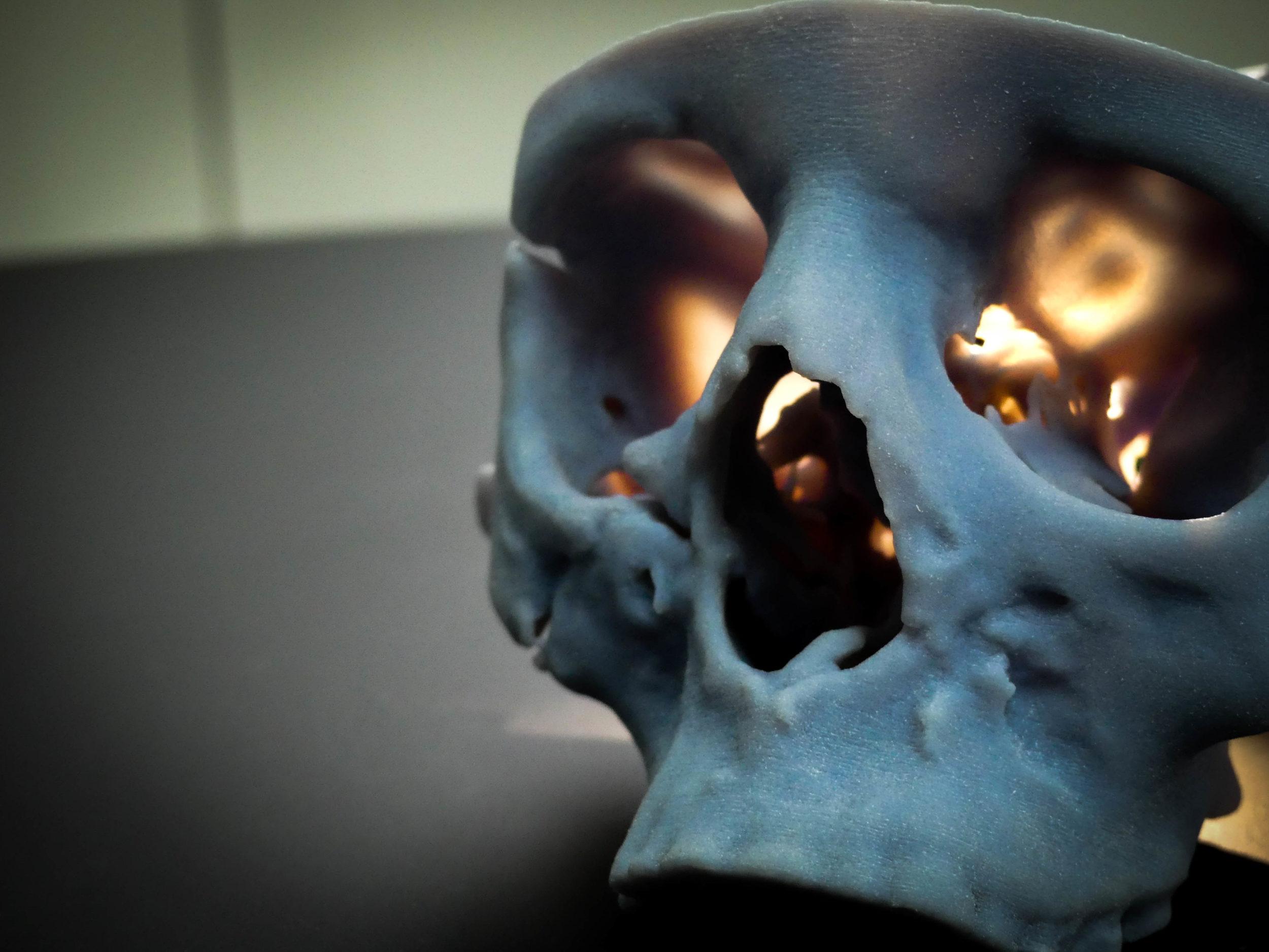 P1000305 Le crâne